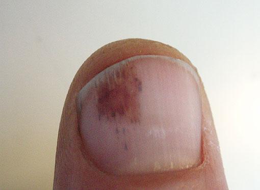 bummed-thumb